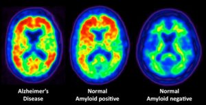 British scientists have developed a PET scan to search for early signs of Alzheimer's disease.
